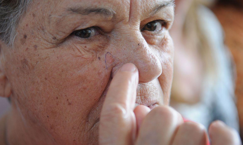Pandemia dificulta diagnóstico precoce de câncer de pele, diz SBD